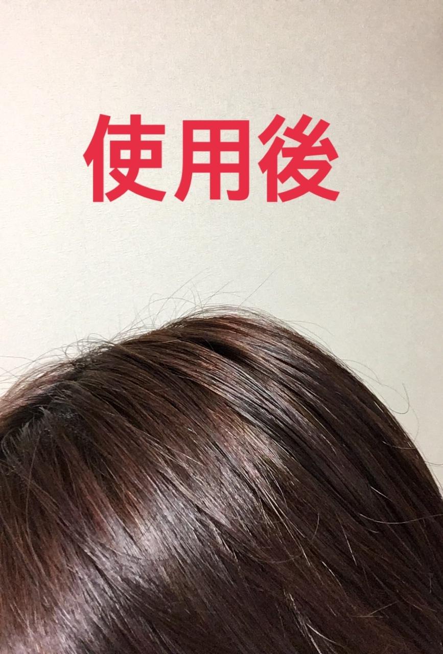 パルティ 泡パックヘアカラーの口コミ写真 By ダックス姫さん 1枚目