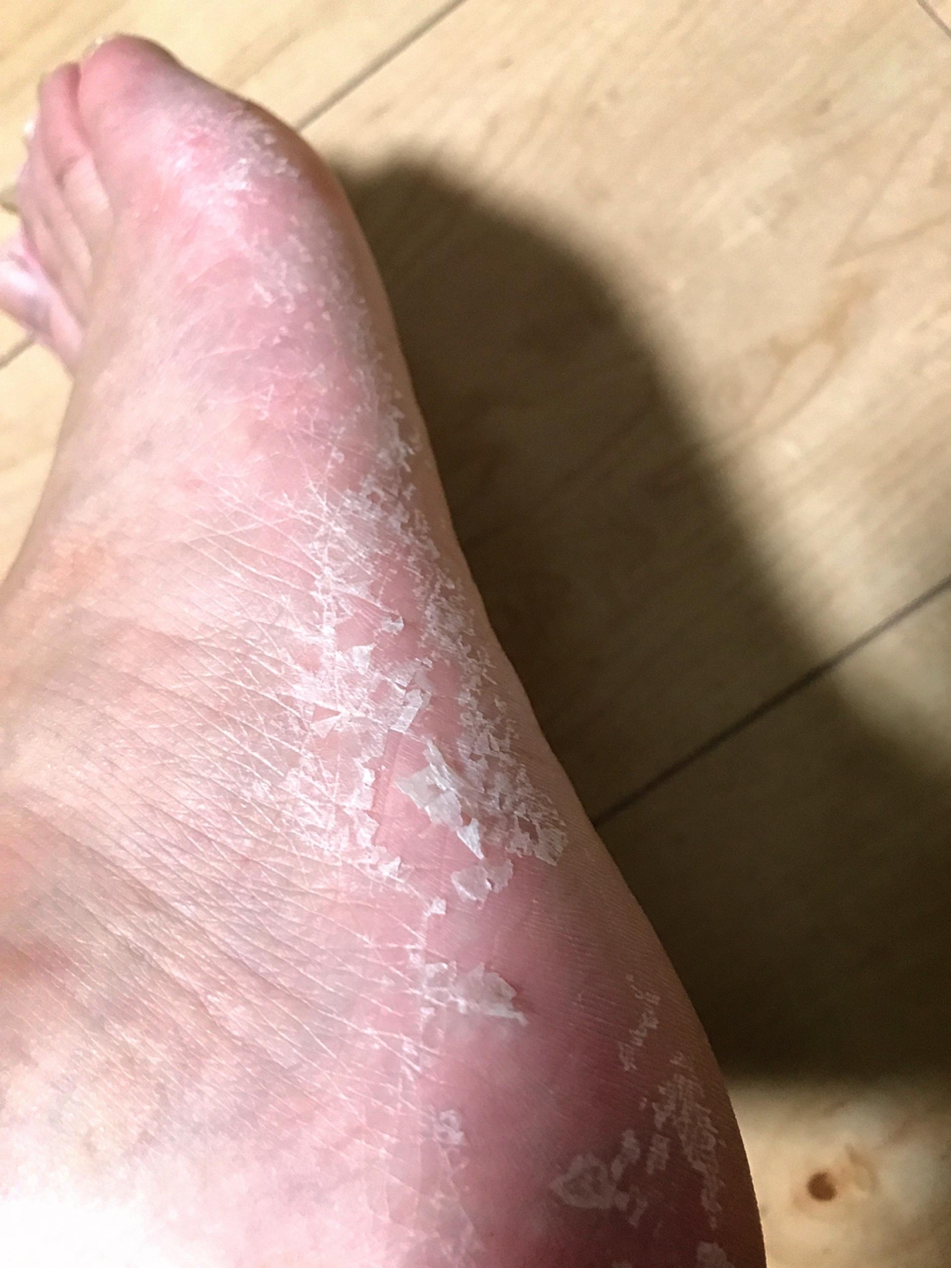かゆく むける ない の 皮 が 足