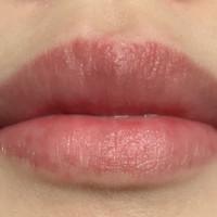 唇 ぶつぶつ