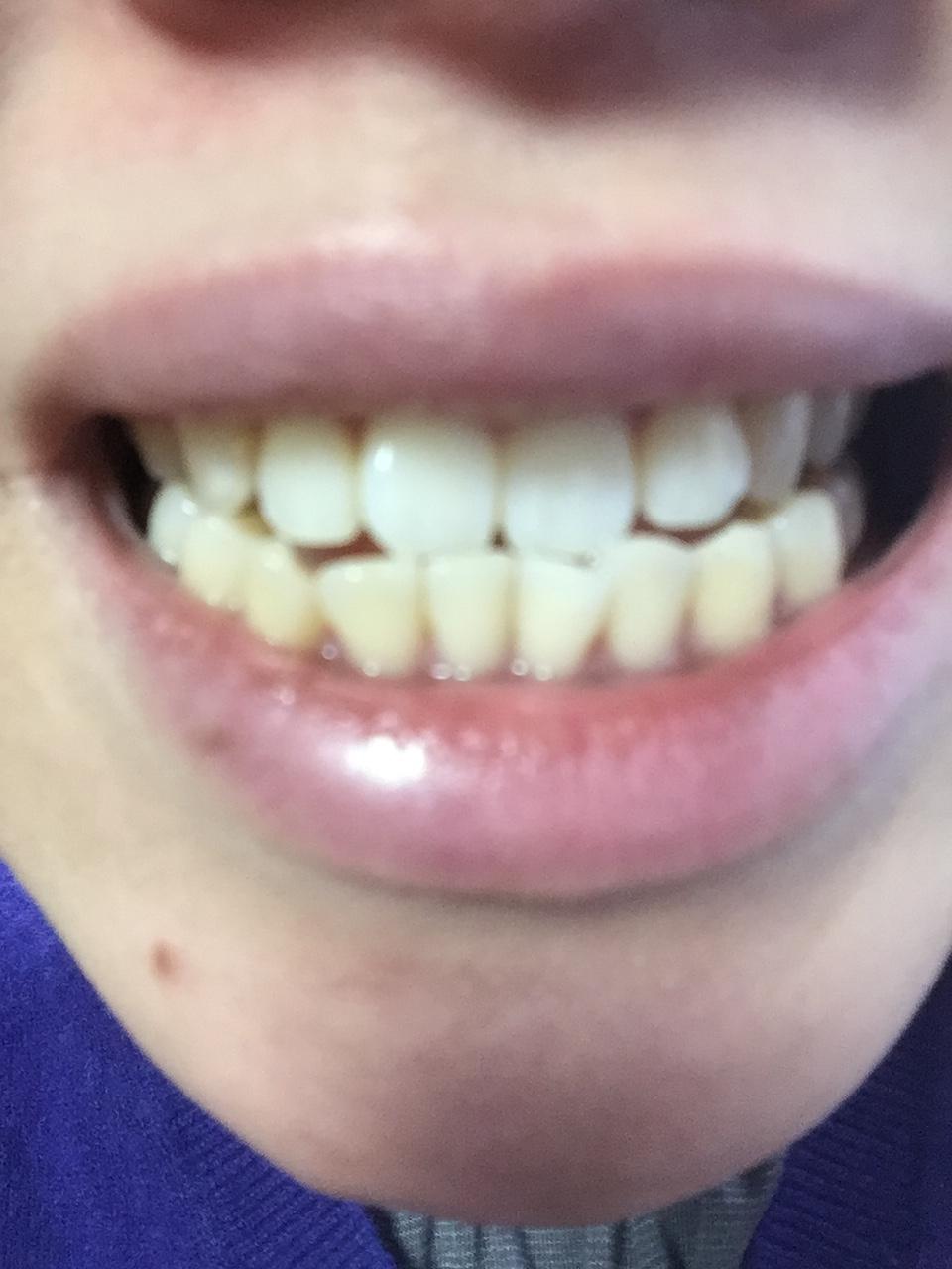 歯科 ちゅら トゥース 医 ホワイトニング